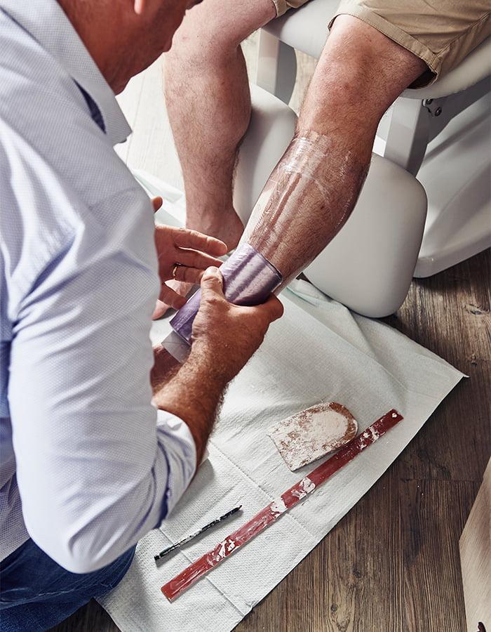 Orthopedische-schoenen-gips